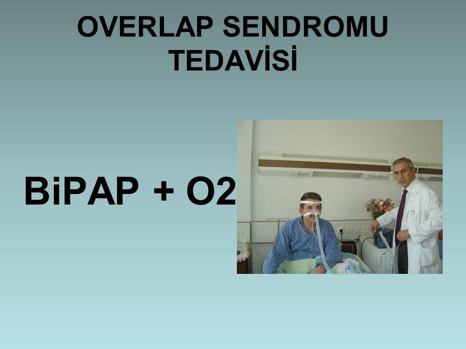 OVERLAP SENDROMU TEDAVİSİ