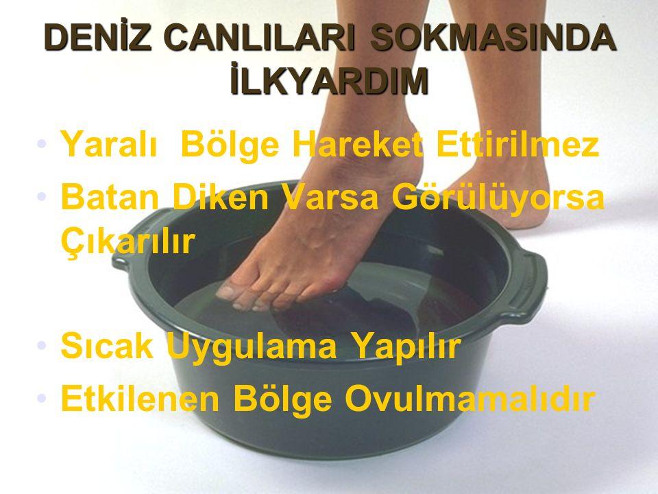 DENİZ CANLILARI SOKMASINDA İLKYARDIM