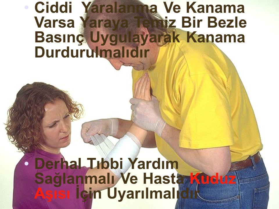 Ciddi Yaralanma Ve Kanama Varsa Yaraya Temiz Bir Bezle Basınç Uygulayarak Kanama Durdurulmalıdır