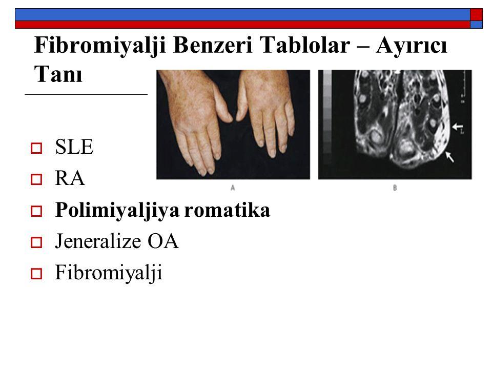 Fibromiyalji Benzeri Tablolar – Ayırıcı Tanı