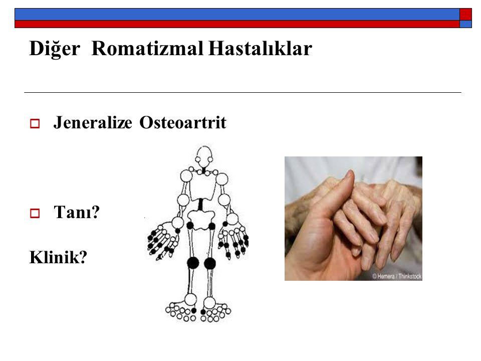 Diğer Romatizmal Hastalıklar