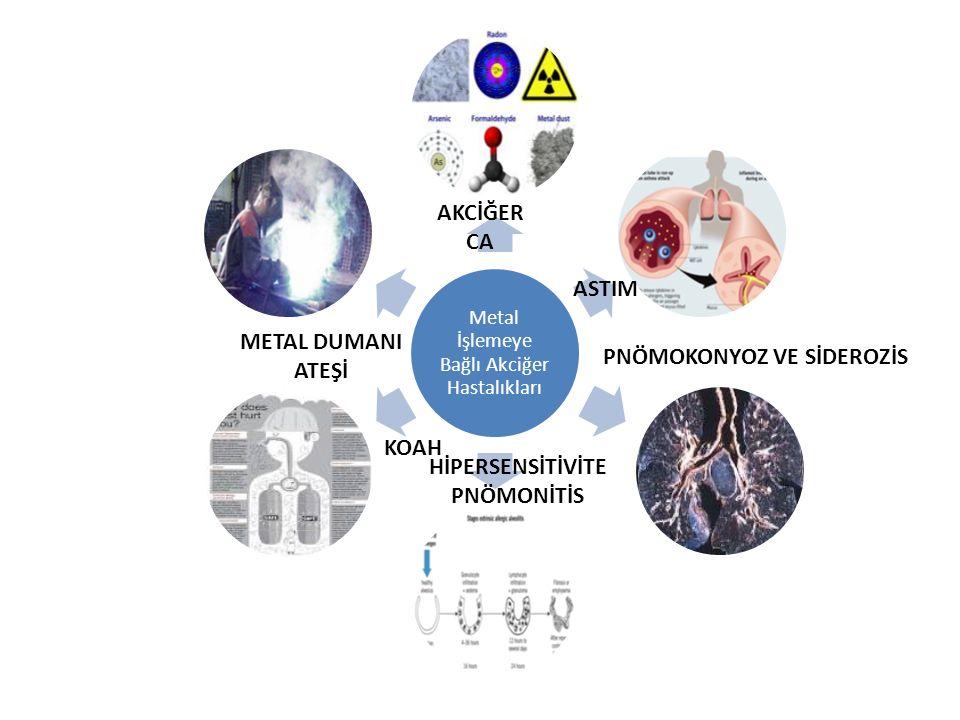 Metal İşlemeye Bağlı Akciğer Hastalıkları