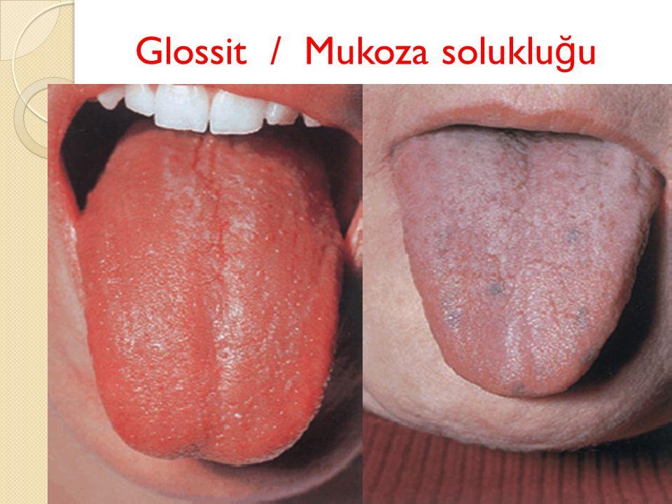 Glossit / Mukoza solukluğu