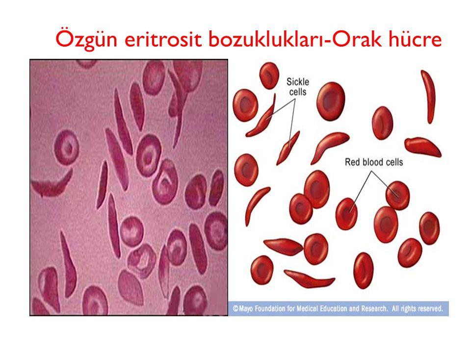 Özgün eritrosit bozuklukları-Orak hücre