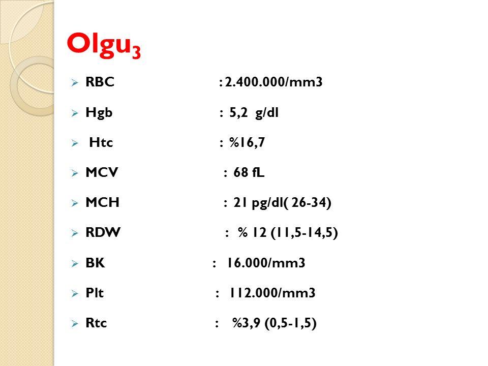 Olgu3 RBC : 2.400.000/mm3 Hgb : 5,2 g/dl Htc : %16,7 MCV : 68 fL