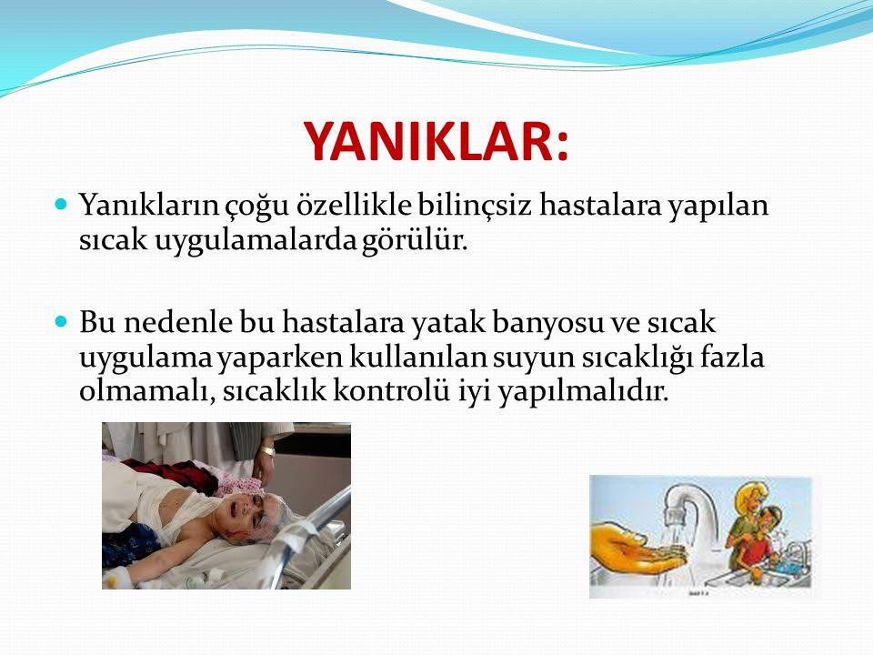 YANIKLAR: Yanıkların çoğu özellikle bilinçsiz hastalara yapılan sıcak uygulamalarda görülür.