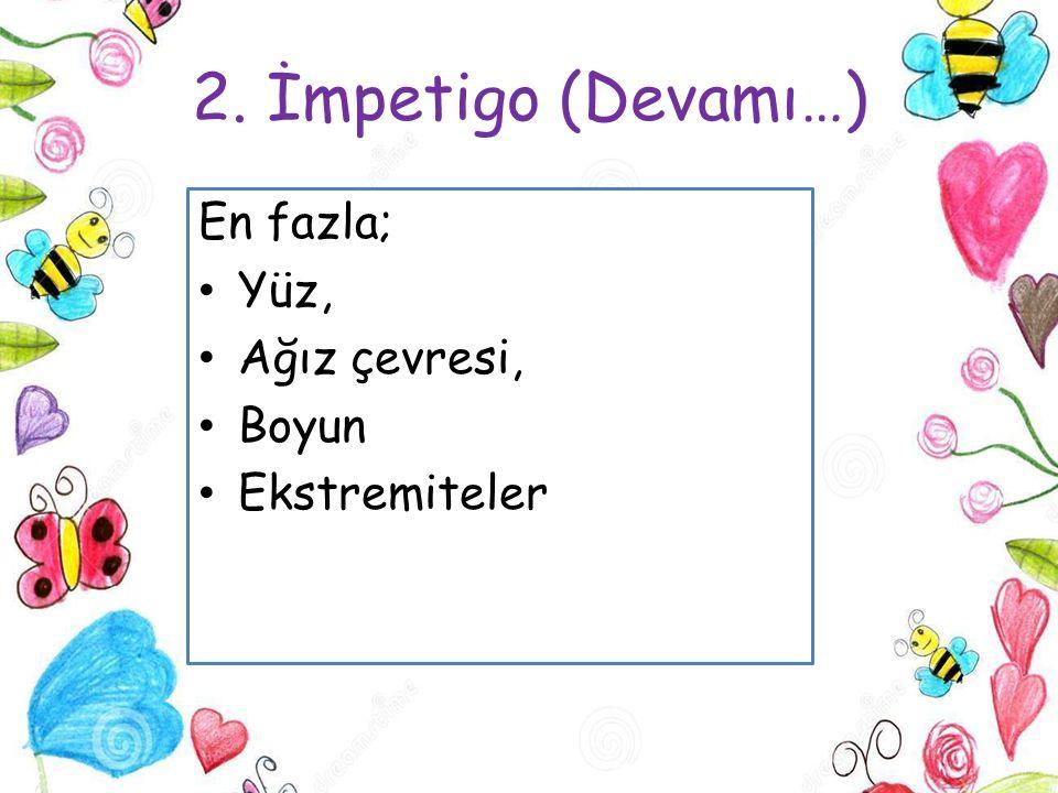 2. İmpetigo (Devamı…) En fazla; Yüz, Ağız çevresi, Boyun Ekstremiteler