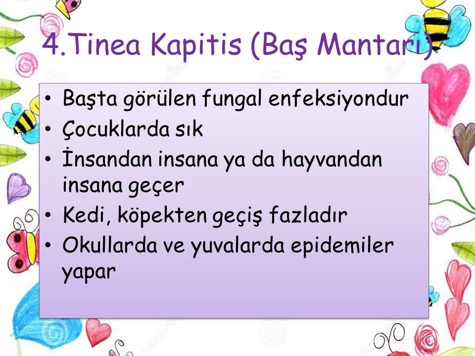 4.Tinea Kapitis (Baş Mantarı)