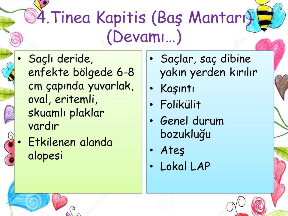 4.Tinea Kapitis (Baş Mantarı) (Devamı…)