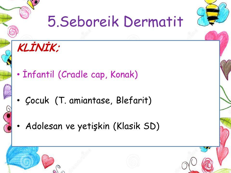 5.Seboreik Dermatit KLİNİK; İnfantil (Cradle cap, Konak)