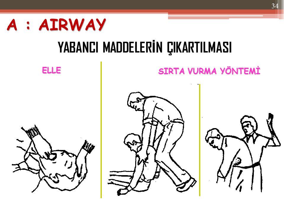 A : AIRWAY YABANCI MADDELERİN ÇIKARTILMASI ELLE SIRTA VURMA YÖNTEMİ