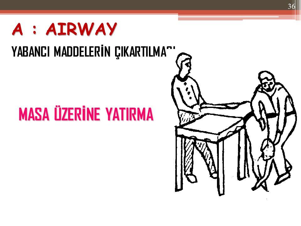 A : AIRWAY YABANCI MADDELERİN ÇIKARTILMASI MASA ÜZERİNE YATIRMA
