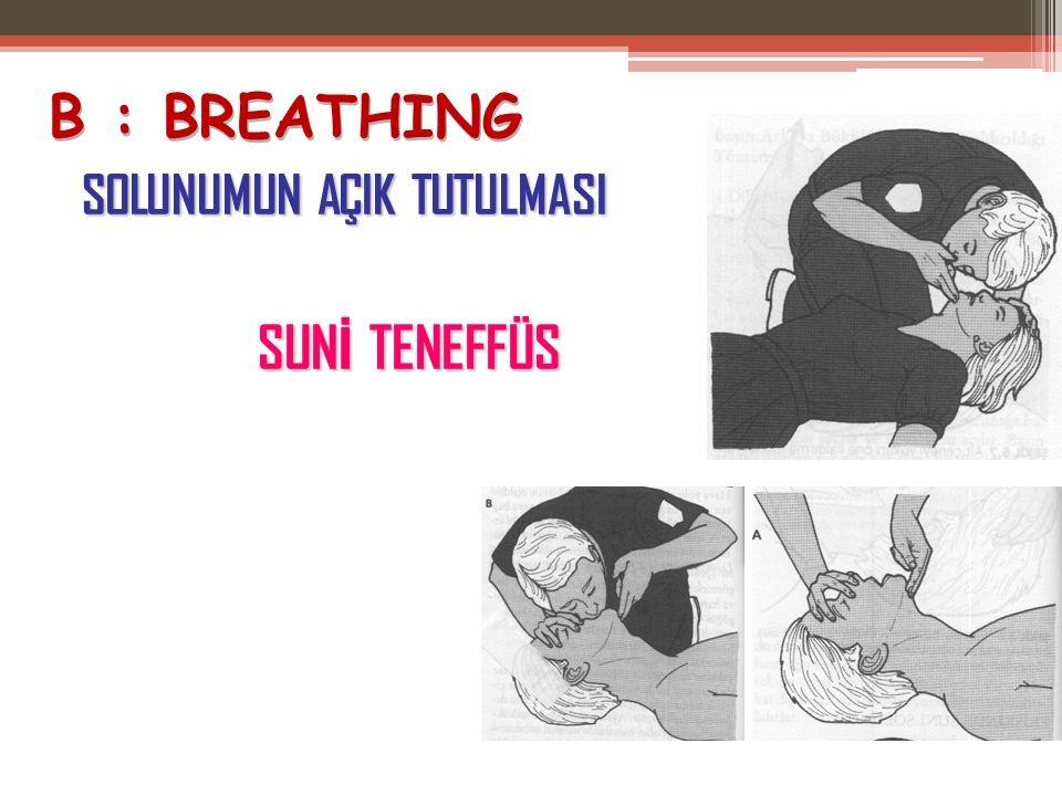 B : BREATHING SOLUNUMUN AÇIK TUTULMASI SUNİ TENEFFÜS