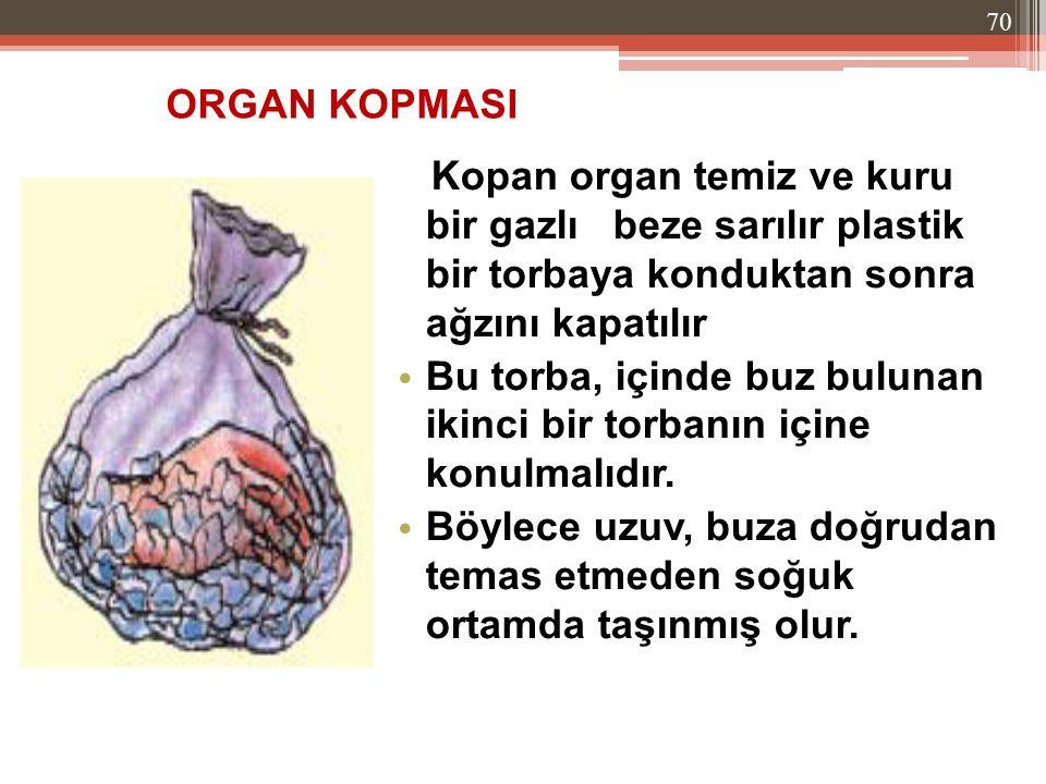 ORGAN KOPMASI Kopan organ temiz ve kuru bir gazlı beze sarılır plastik bir torbaya konduktan sonra ağzını kapatılır.