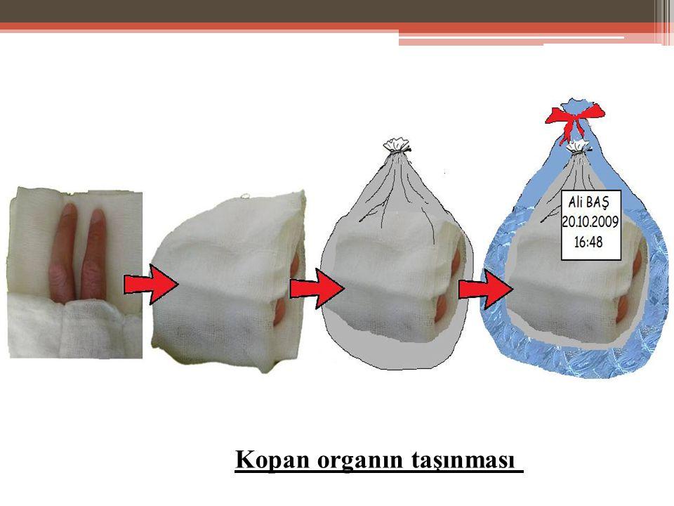 Kopan organın taşınması