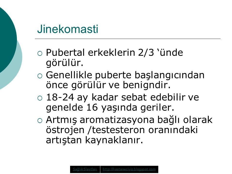 Jinekomasti Pubertal erkeklerin 2/3 'ünde görülür.