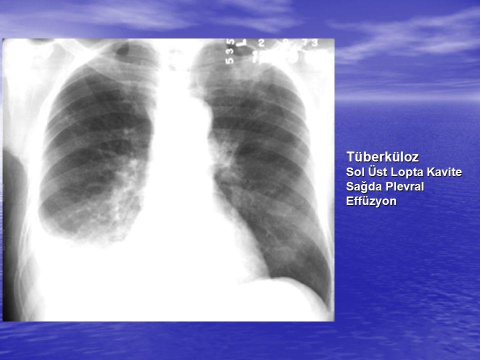 Tüberküloz Sol Üst Lopta Kavite Sağda Plevral Effüzyon