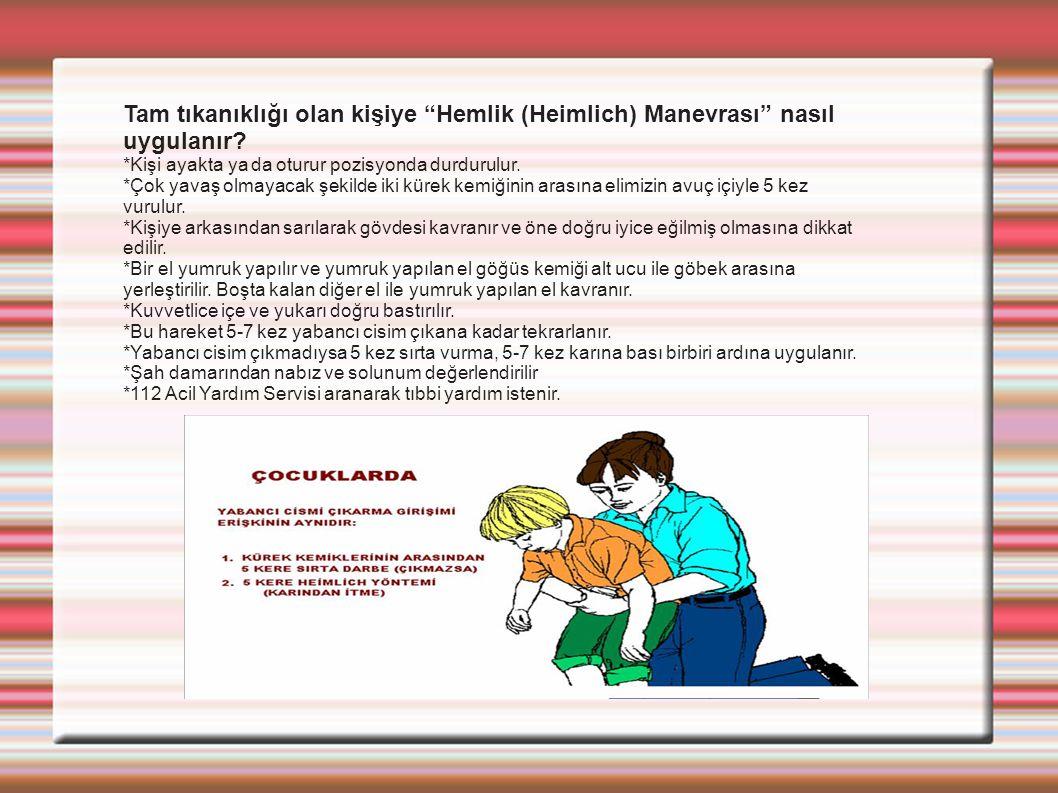 Tam tıkanıklığı olan kişiye Hemlik (Heimlich) Manevrası nasıl uygulanır