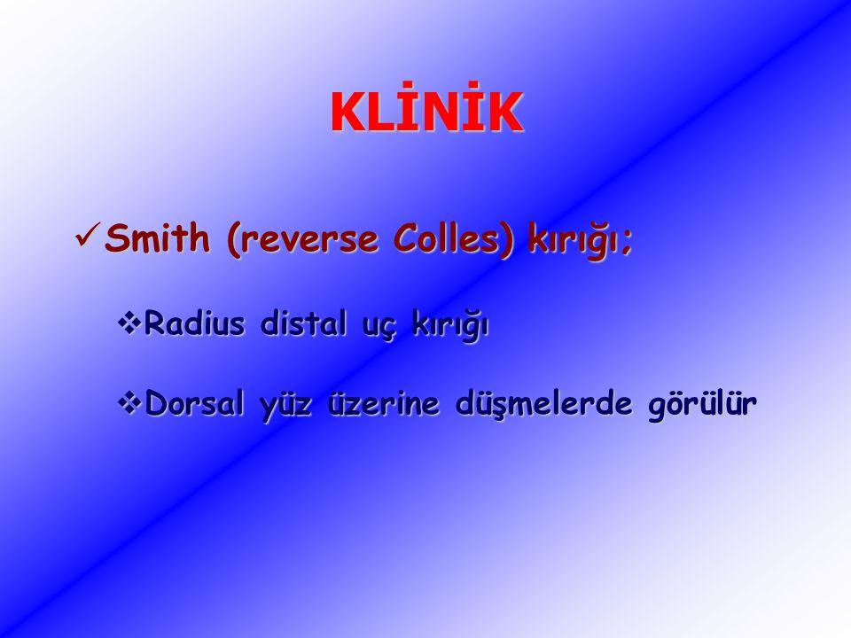 KLİNİK Smith (reverse Colles) kırığı; Radius distal uç kırığı