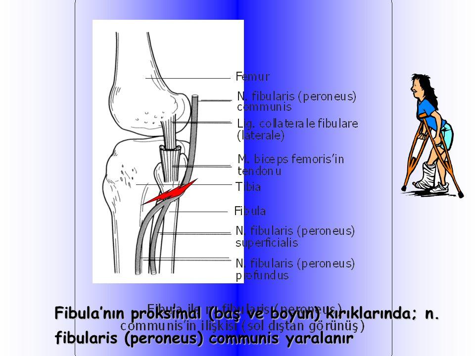 Fibula'nın proksimal (baş ve boyun) kırıklarında; n