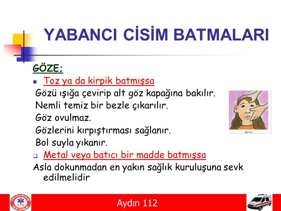 YABANCI CİSİM BATMALARI
