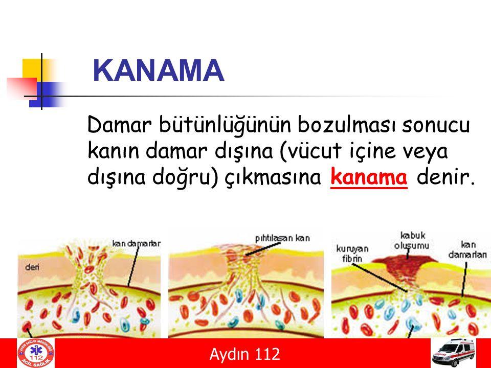 KANAMA Damar bütünlüğünün bozulması sonucu kanın damar dışına (vücut içine veya dışına doğru) çıkmasına kanama denir.