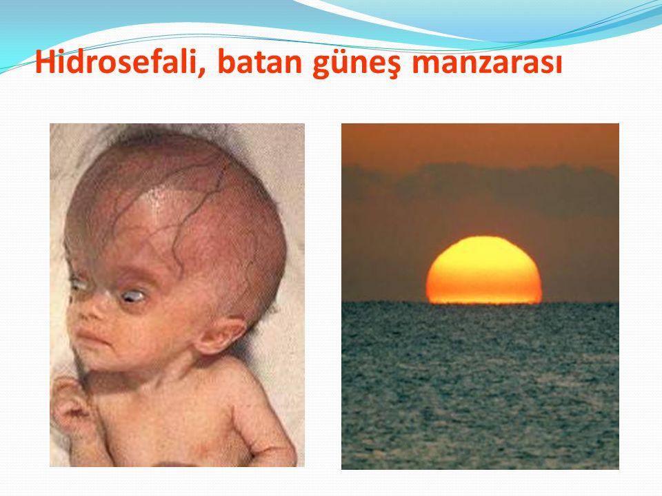Hidrosefali, batan güneş manzarası