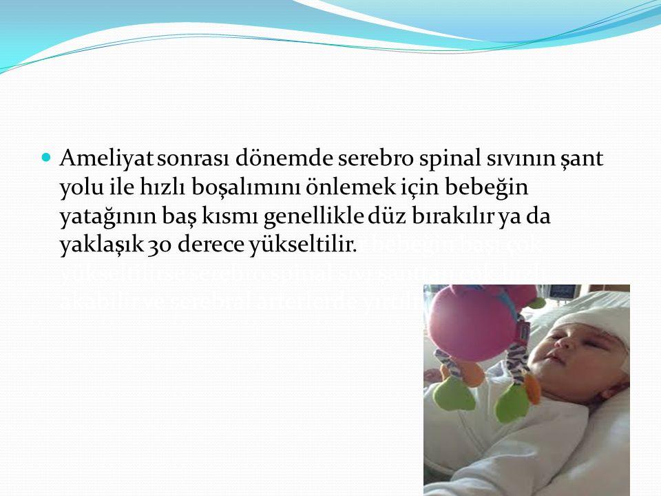 Ameliyat sonrası dönemde serebro spinal sıvının şant yolu ile hızlı boşalımını önlemek için bebeğin yatağının baş kısmı genellikle düz bırakılır ya da yaklaşık 30 derece yükseltilir.r bebeğin başı çok yükseltilirse serebro spinal sıvı şanttan çok hızlı akabilir ve serebral arterlerde yırtılmalar görülebilir.