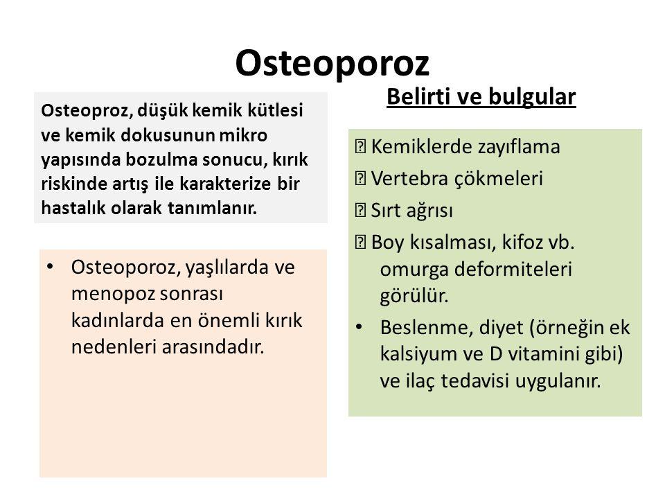 Osteoporoz Belirti ve bulgular  Kemiklerde zayıflama