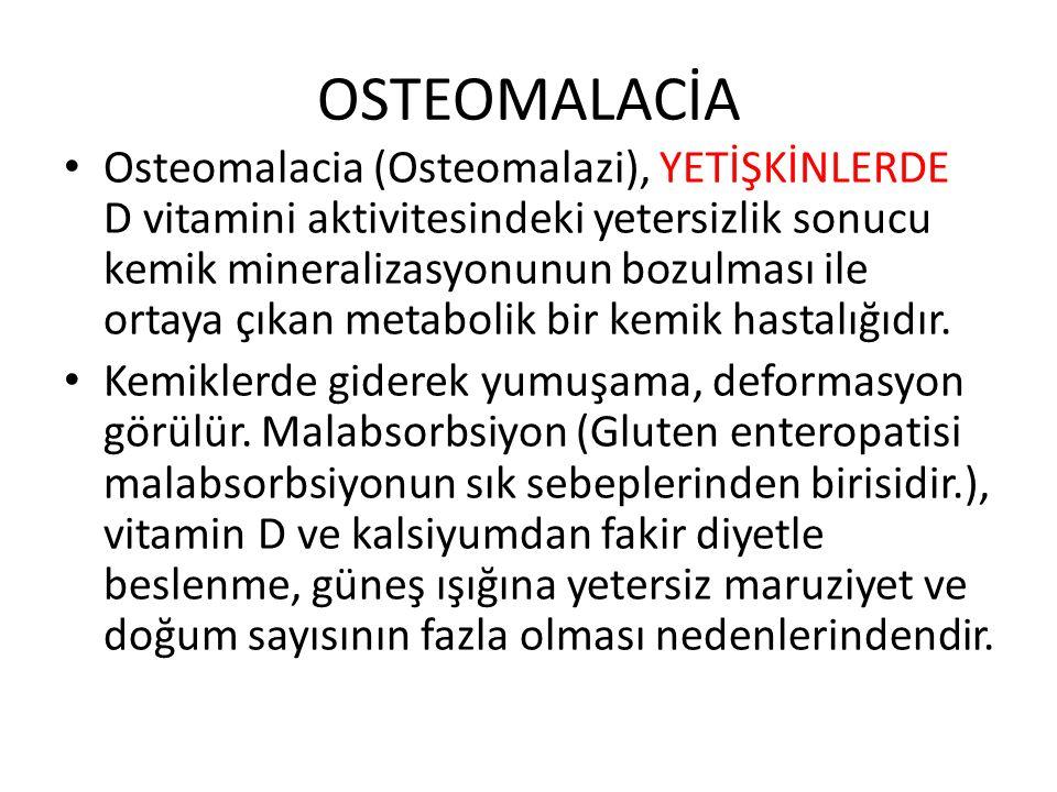 OSTEOMALACİA
