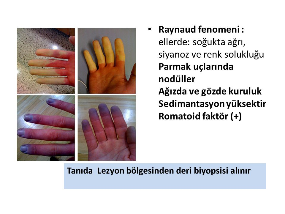 Raynaud fenomeni : ellerde: soğukta ağrı, siyanoz ve renk solukluğu Parmak uçlarında nodüller Ağızda ve gözde kuruluk Sedimantasyon yüksektir Romatoid faktör (+)