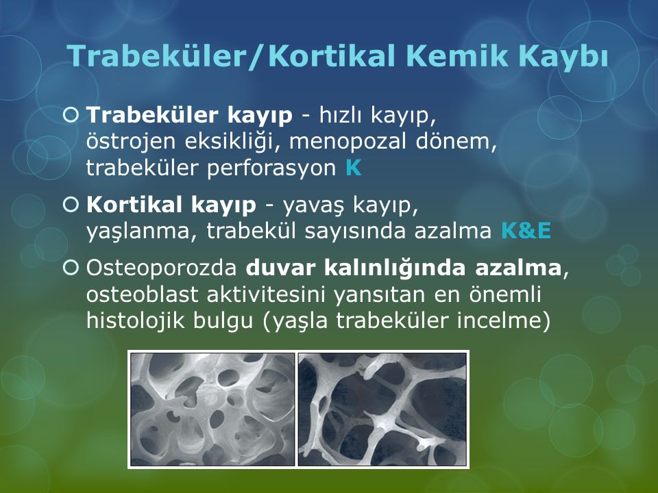 Trabeküler/Kortikal Kemik Kaybı