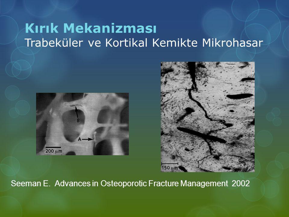 Kırık Mekanizması Trabeküler ve Kortikal Kemikte Mikrohasar