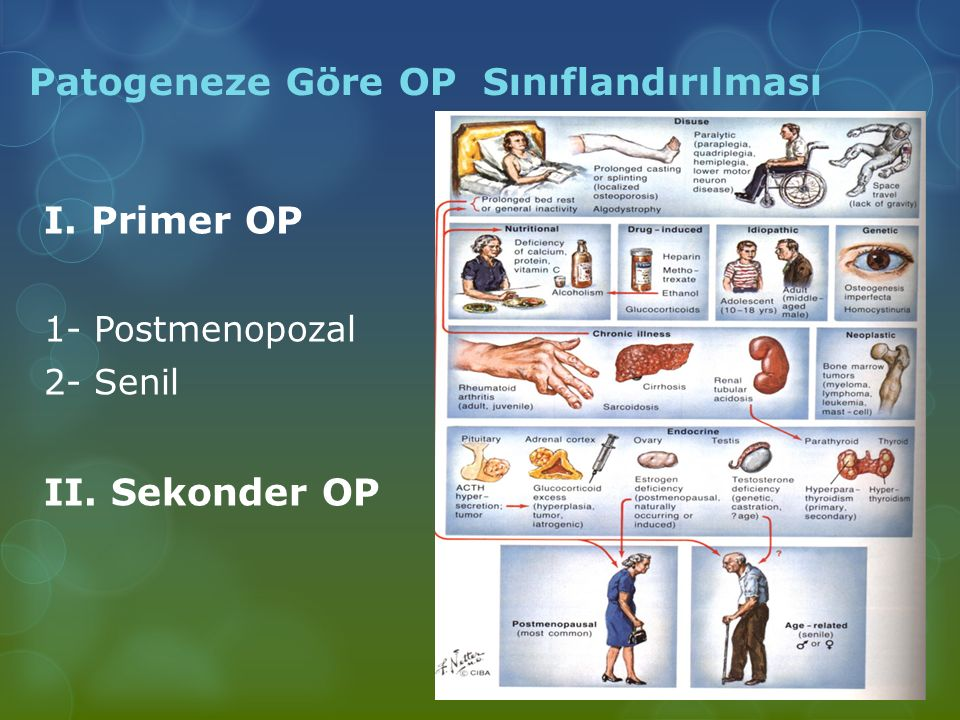 Patogeneze Göre OP Sınıflandırılması
