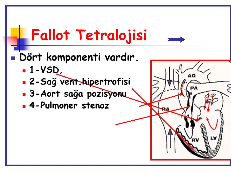 Fallot Tetralojisi Dört komponenti vardır. 1-VSD,
