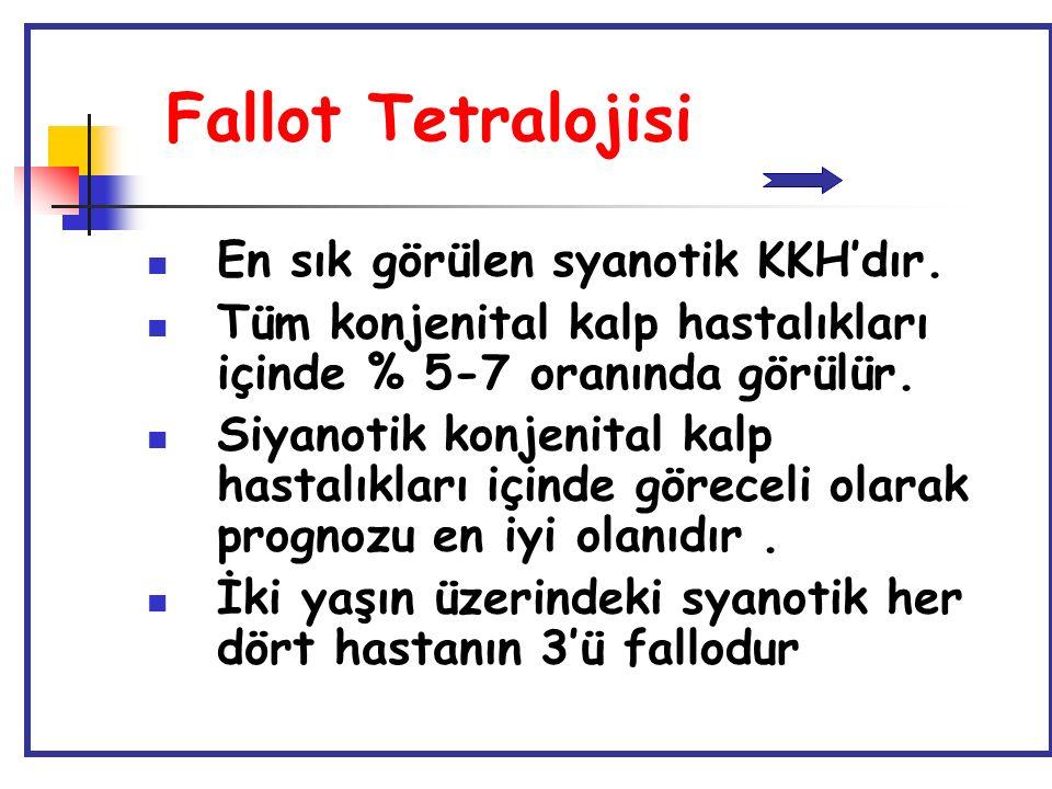 Fallot Tetralojisi En sık görülen syanotik KKH'dır.