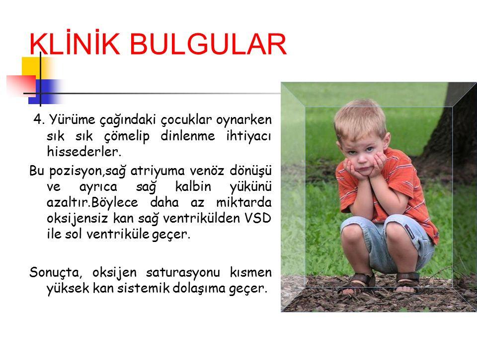 KLİNİK BULGULAR 4. Yürüme çağındaki çocuklar oynarken sık sık çömelip dinlenme ihtiyacı hissederler.