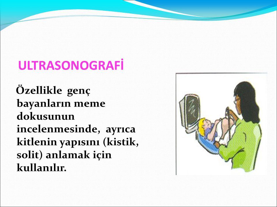 ULTRASONOGRAFİ Özellikle genç bayanların meme dokusunun incelenmesinde, ayrıca kitlenin yapısını (kistik, solit) anlamak için kullanılır.