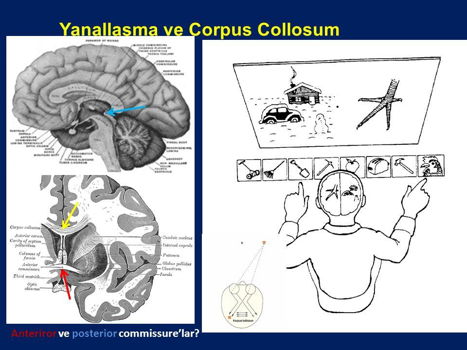 Yanallaşma ve Corpus Collosum