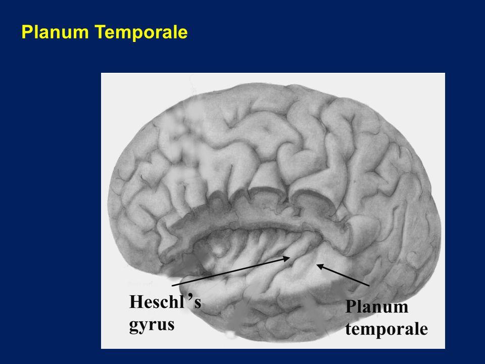 Planum Temporale