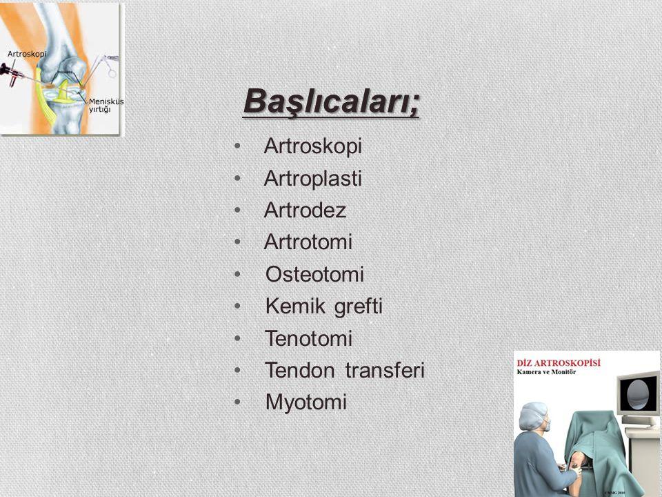 Başlıcaları; Artroskopi Artroplasti Artrodez Artrotomi Osteotomi