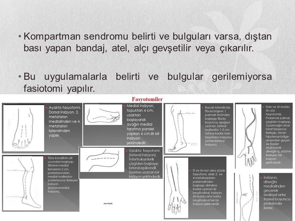 Kompartman sendromu belirti ve bulguları varsa, dıştan bası yapan bandaj, atel, alçı gevşetilir veya çıkarılır.