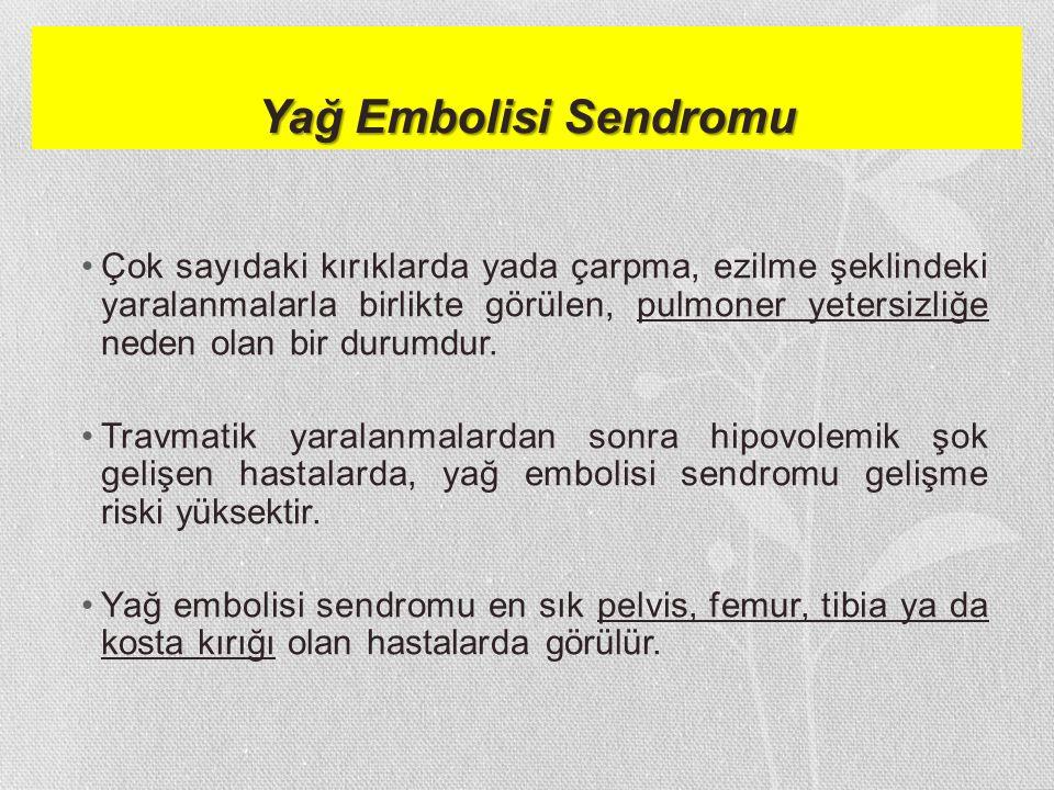 Yağ Embolisi Sendromu