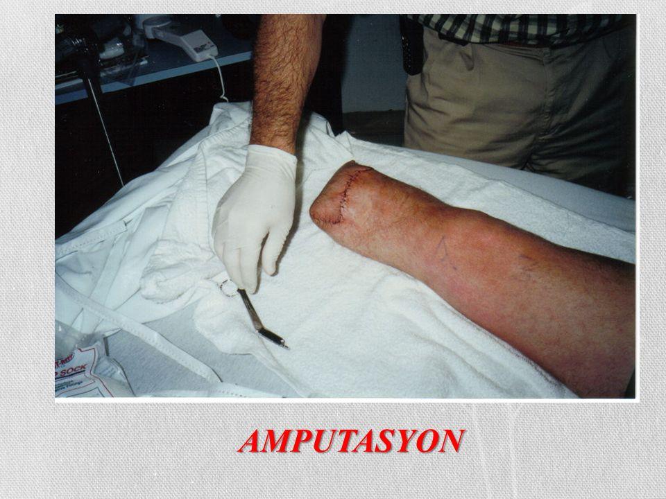 AMPUTASYON
