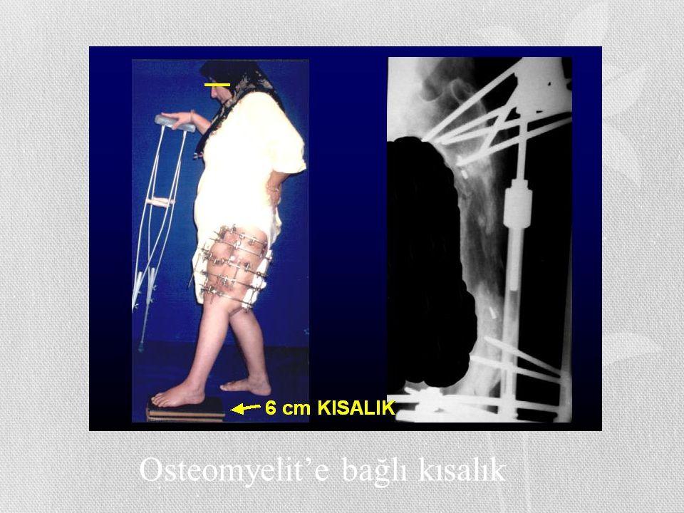 Osteomyelit'e bağlı kısalık
