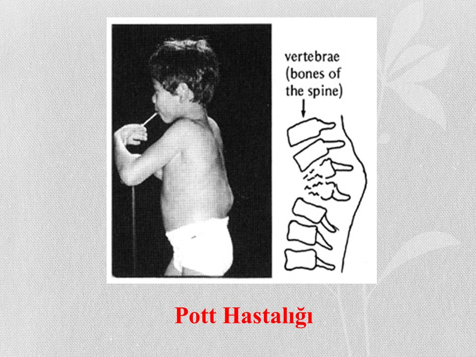 Pott Hastalığı