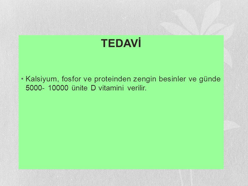 TEDAVİ Kalsiyum, fosfor ve proteinden zengin besinler ve günde 5000- 10000 ünite D vitamini verilir.