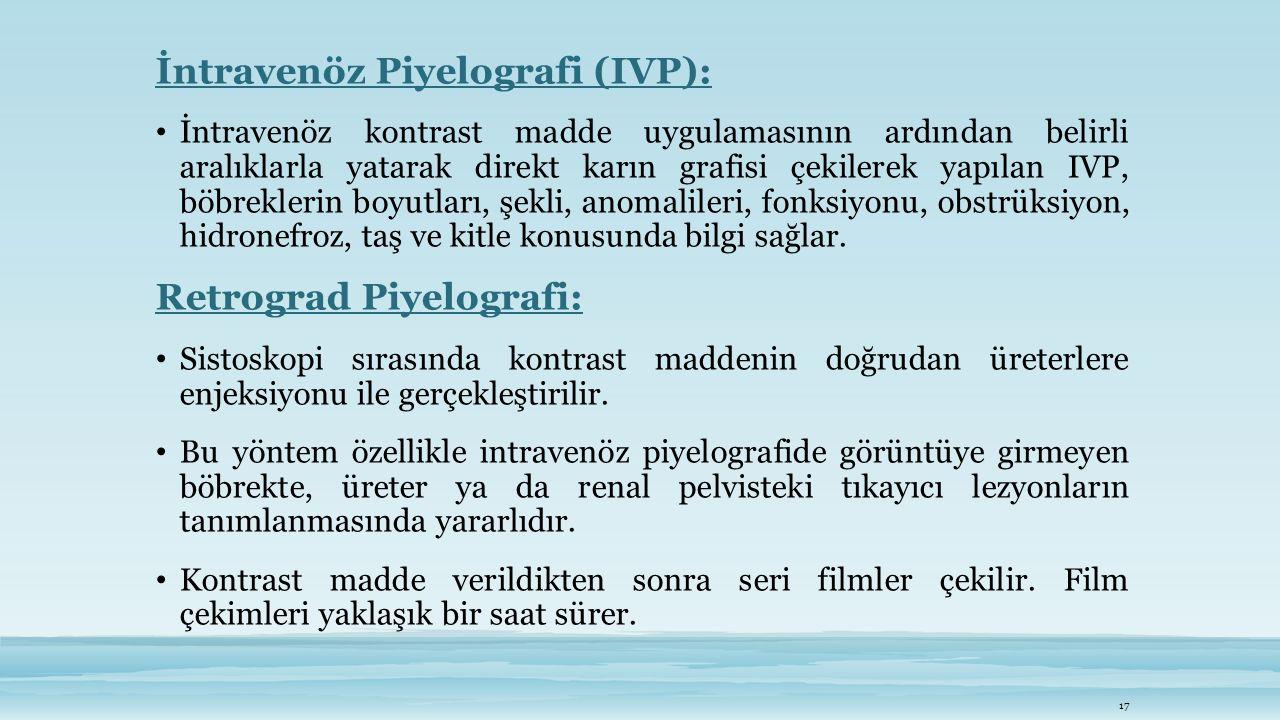 İntravenöz Piyelografi (IVP):