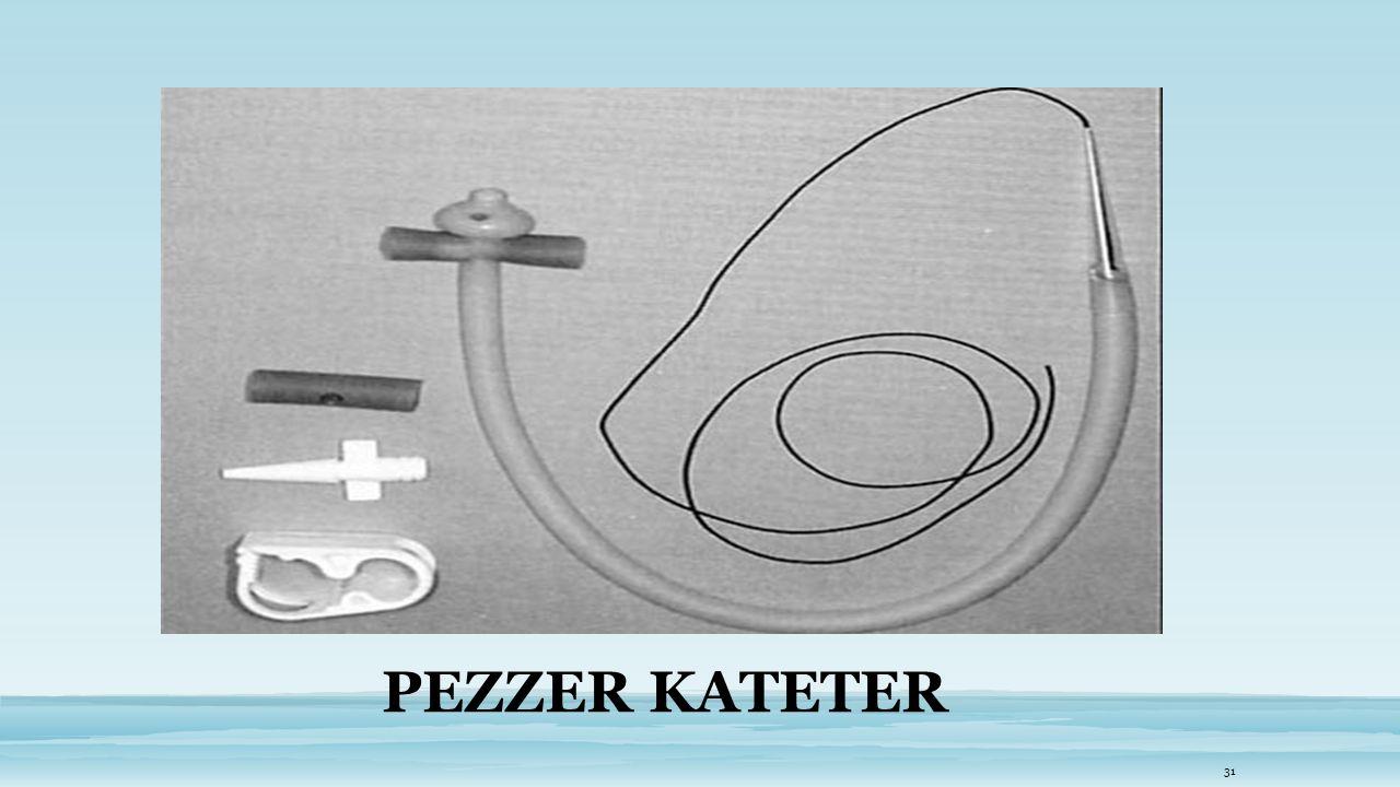 PEZZER KATETER
