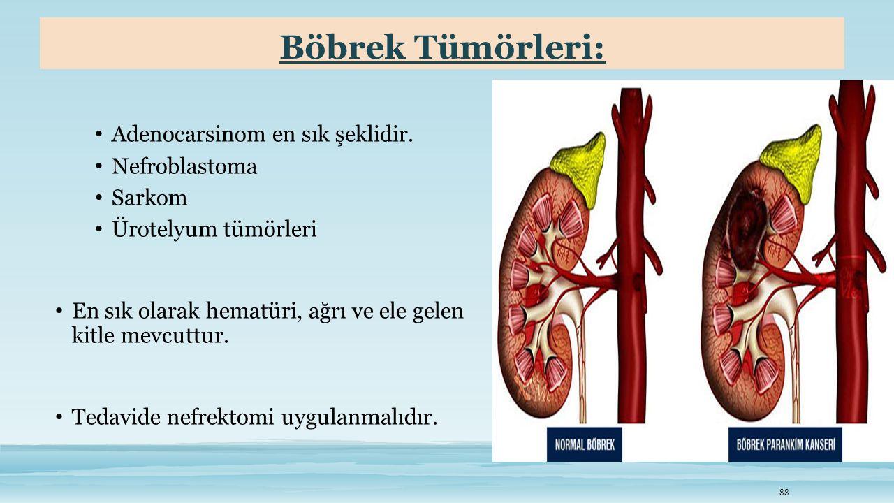 Böbrek Tümörleri: Adenocarsinom en sık şeklidir. Nefroblastoma Sarkom